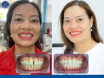 Bọc răng sứ lấy lại nụ cười xinh - 1