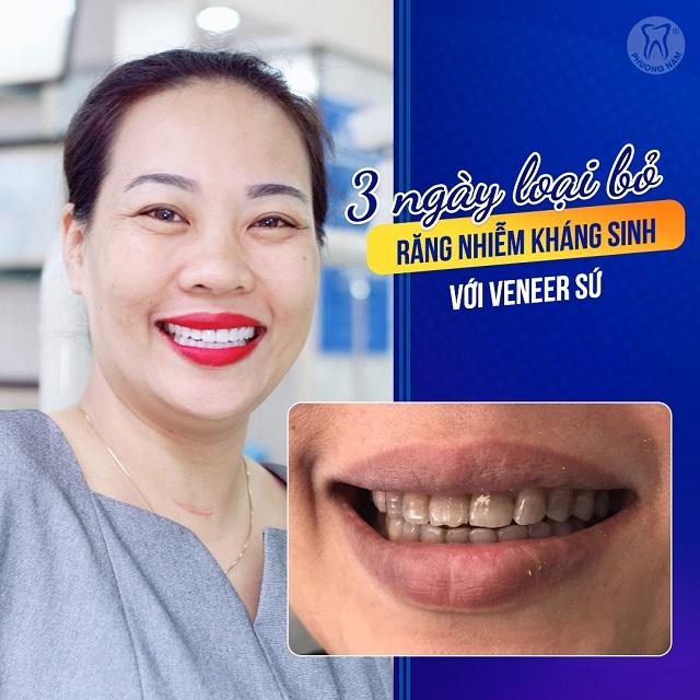 Loại bỏ răng xấu hỏng chỉ sau 3 ngày - 1