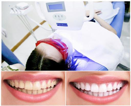 Tẩy trắng răng Flash Whrite - công nghệ hiện đại tiên tiến - 1