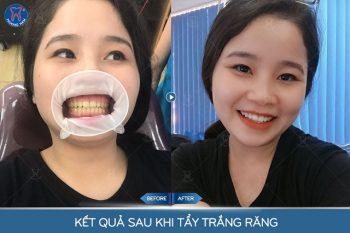Răng trắng sáng, thoải mái ngay sau khi làm - 1