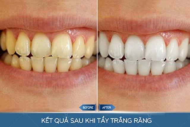 Răng nhiễm màu trở nên trắng sáng chỉ sau 1 tiếng - 1