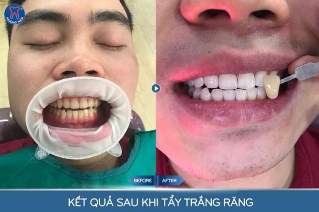 Lên 3 tone màu sau khi tẩy trắng răng - 1