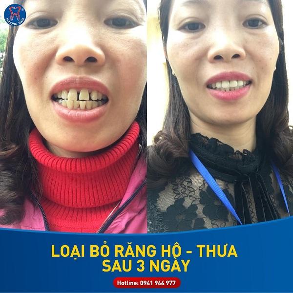 Bọc răng sứ điều chỉnh khớp cắn giúp tăng cường khả năng ăn nhai - 1