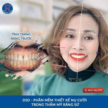 Bọc răng sứ đem đến cho bạn một nụ cười hoàn hảo chuẩn tỉ lệ - 1