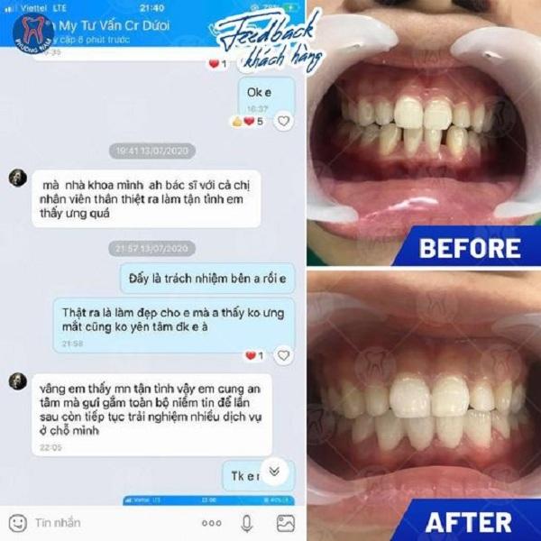 Ý kiến của Khách hàng sau khi bọc răng sứ tại nha khoa Phương Nam - 1