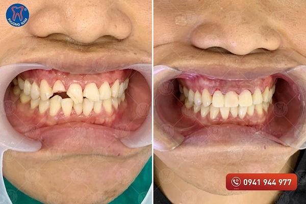 Răng sứt mẻ được khắc phục triệt để với phương pháp bọc răng sứ - 1