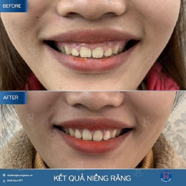 Trường hợp chữa cười hở lợi do thân răng ngắn tại nha khoa Phương Nam - 1