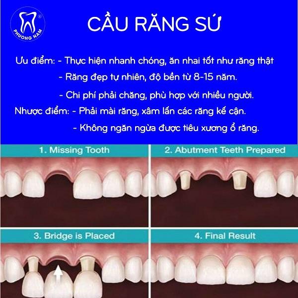 Ưu điểm của bắc cầu răng sứ - 1