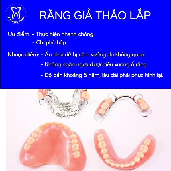 Ưu điểm nổi bật của phương pháp làm răng giả hàm tháo lắp - 1