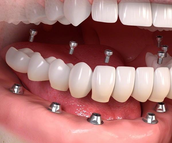 Làm răng giả - đâu là giải pháp tối ưu dành cho bạn?