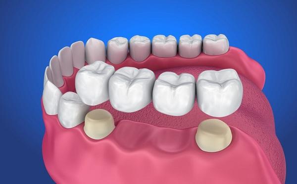 Làm cầu răng sứ dễ gây ra hiện tượng tiêu xương - 1