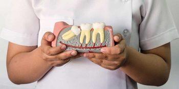 Nhổ răng khôn cần nhiều kiến thức quan trọng - 1