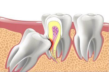 Răng khôn gây đau đớn cần loại bỏ sớm - 1