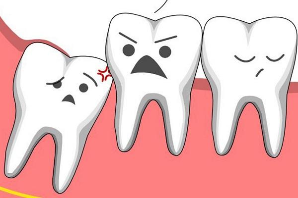 Răng khôn ảnh hưởng đến cuộc sống của bạn rất nhiều - 1