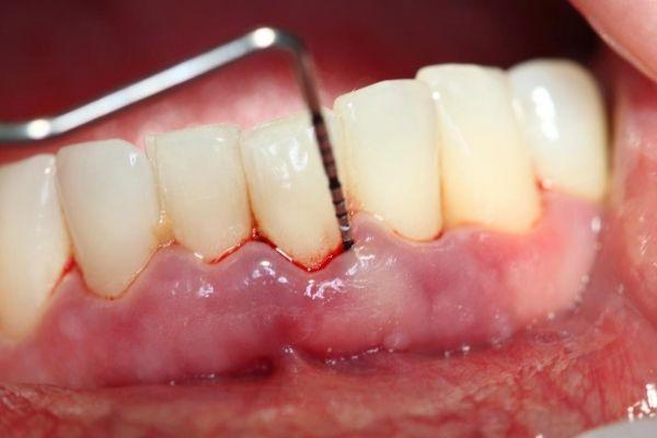 Bác sĩ sẽ tiền hành vệ sinh sạch sâu cho hàm răng trước khi điều trị viêm nha chu - 1