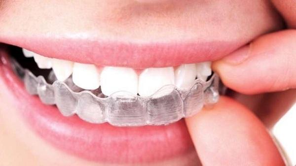 Các bước sử dụng tẩy trắng răng opalescence khá đơn giản - 1