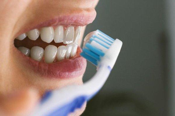 Chải răng trước khi đeo máng để răng được giữ sạch và nhanh chóng trắng sáng hơn - 1