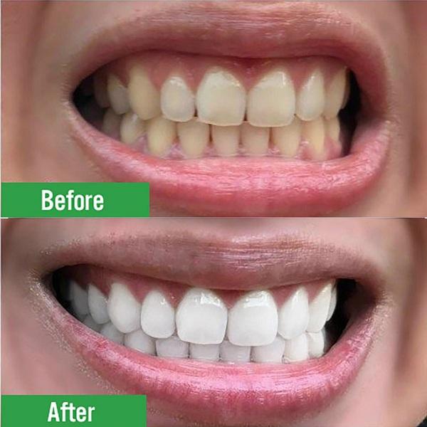 Sở hữu hàm răng trắng sáng ngay tại nhà - 1