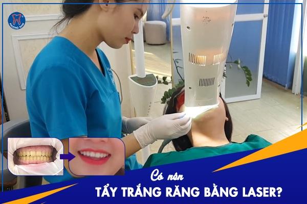 Có nên tẩy trắng răng bằng Laser không? - 1