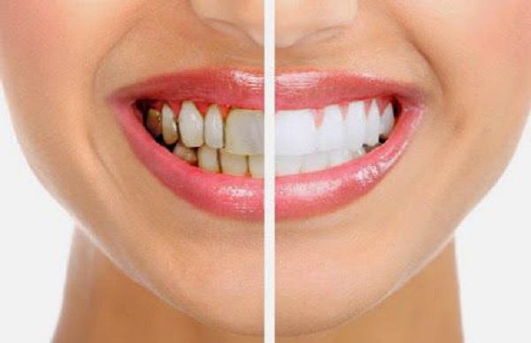 Tẩy trắng răng sáng sạch mảng bám - 1