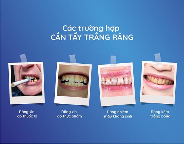 Các trường hợp có thể sử dụng phương pháp tẩy trắng răng bằng Laser - 1