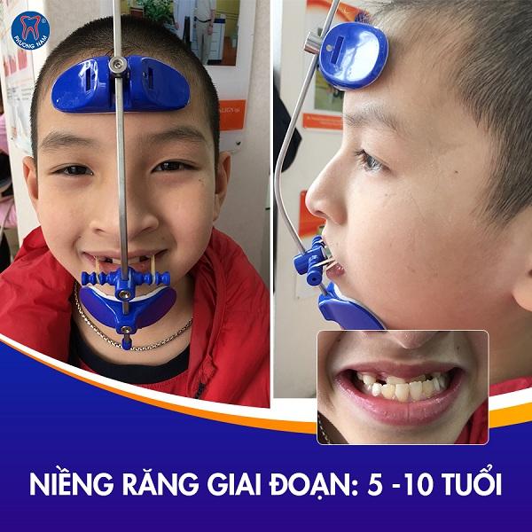 Thời điểm vàng niềng răng dành cho các bé - 1
