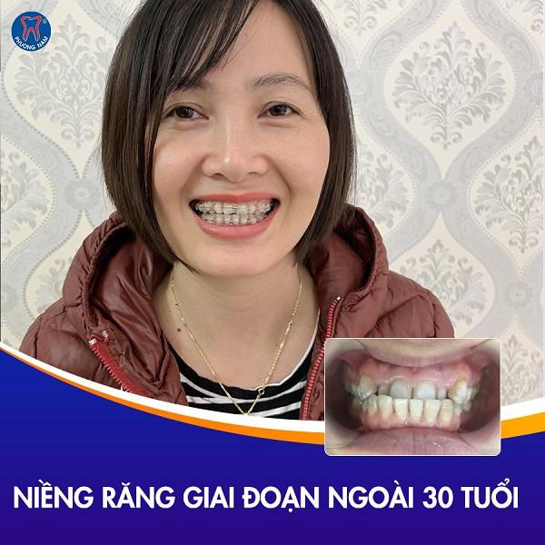 Ngoài 30 bạn vẫn có thể niềng răng tại nha khoa Phương Nam với phác đồ điều trị chuyên biệt - 1