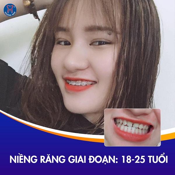 Giai đoạn niềng răng khi bạn đã trưởng thành - 1