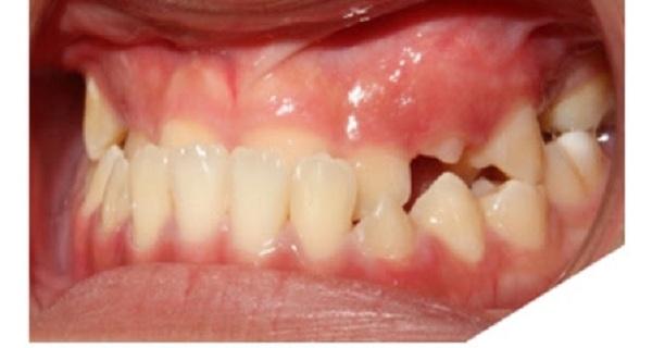 Tình trạng khớp cắn ngược là có răng chìa ra ngoài gây mất thẩm mỹ - 1