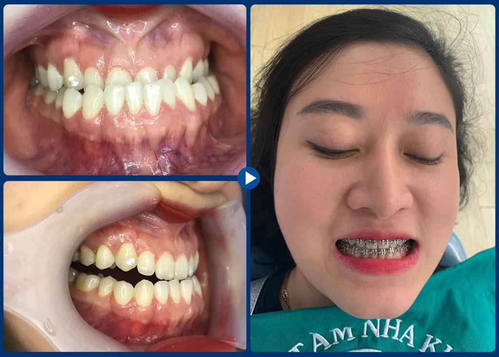 Khớp cắn ngược do răng và do xương phát triển sai lệch - 1