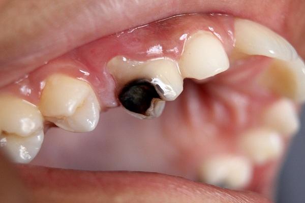 Các triệu chứng của việc nhiễm trùng răng có thể bắt nguồn từ chiếc răng sâu của bạn - 1