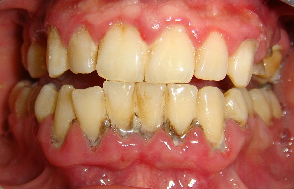 Viêm chân răng lâu ngày sẽ dẫn tới tình trạng nhiễm trùng răng - 1