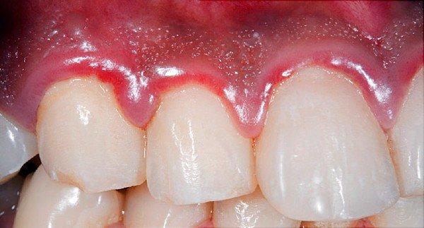 Viêm nha chu lâu ngày dễ dẫn tới viêm nhiễm răng ảnh hưởng tới việc ăn nhai - 1