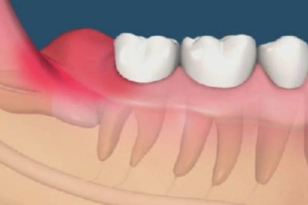 Đau - sưng tấy là những biểu hiện đầu tiên của nhiễm trùng răng - 1