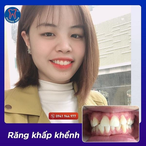 Răng khấp khểnh quá khít nhau cũng cần chỉ định nhổ - 1