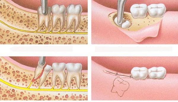 Nhổ răng khôn không hề ảnh hưởng tới thần kinh - 1