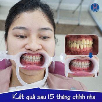Các yếu tố ảnh hưởng tới thời gian niềng răng-1