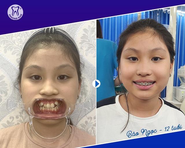 Thời gian niềng răng phụ thuộc nhiều vào tuổi tác khi bắt đầu thực hiện -1