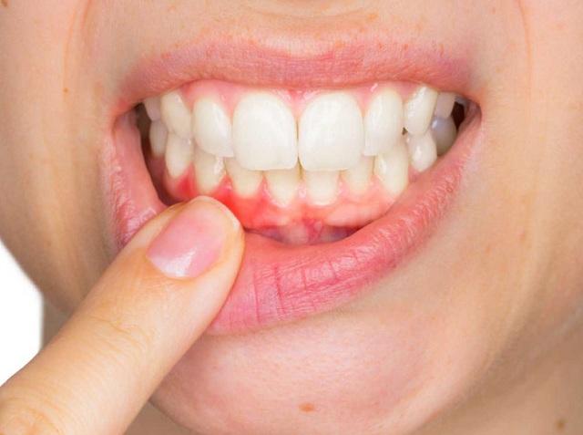 Nếu chăm sóc răng sứ không cẩn thận bạn có thể đối mặt với nguy cơ sưng viêm lợi -1