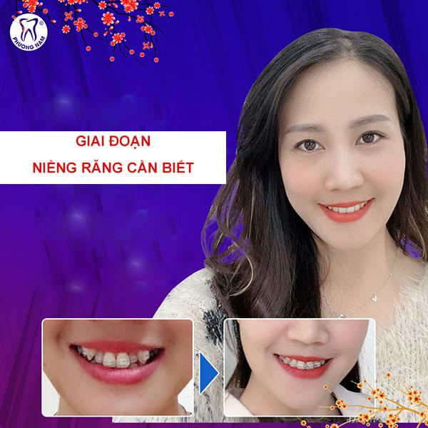 Các giai đoạn niềng răng cần biết để có được kết quả tốt nhất 1