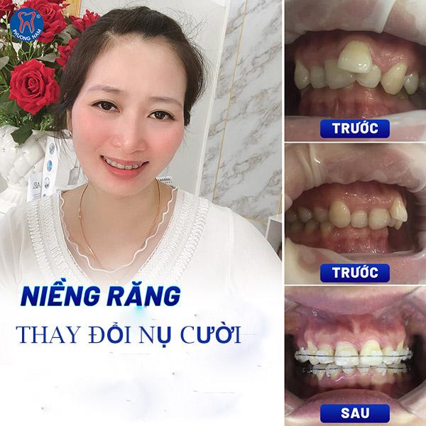 Kết thúc giai đoạn niềng răng sẽ có được hàm răng đều đẹp -1