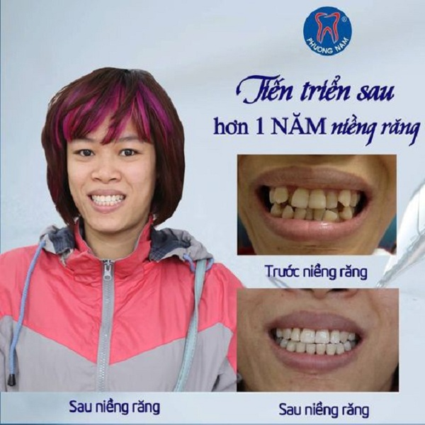 Tiến triển chỉ sau 1 năm niềng răng -1