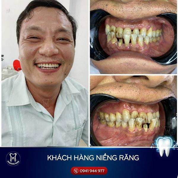 40 tuổi niềng răng vẫn hiệu quả rõ nét -1