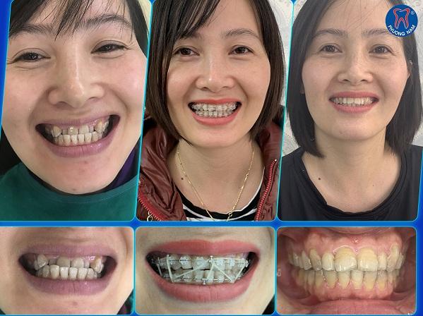 Niềng răng là phương pháp giúp răng trở về vị trí chuẩn khớp cắn -1
