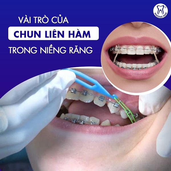 Vai trò của chun liên hàm trong niềng răng là gì?