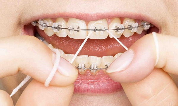 Đeo chun liên hàm đúng cách để có 1 hàm răng đẹp -1